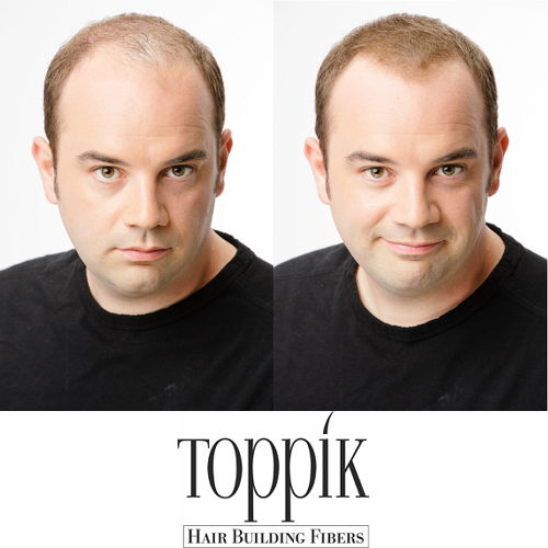Toppik Starter-Set